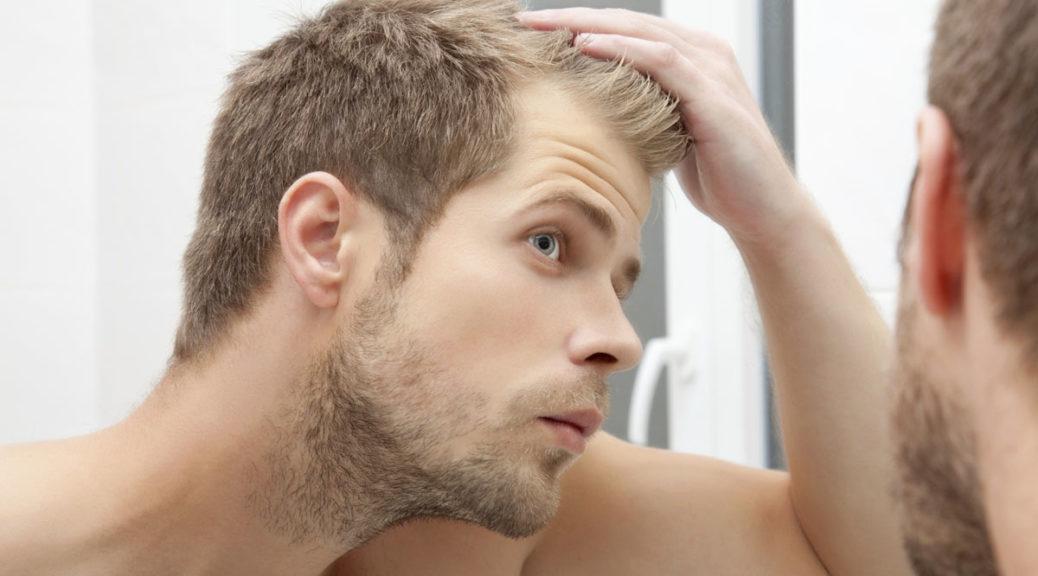 imagesChute-de-cheveux-homme-10.jpg